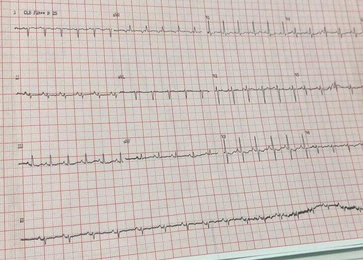 eletrocardio