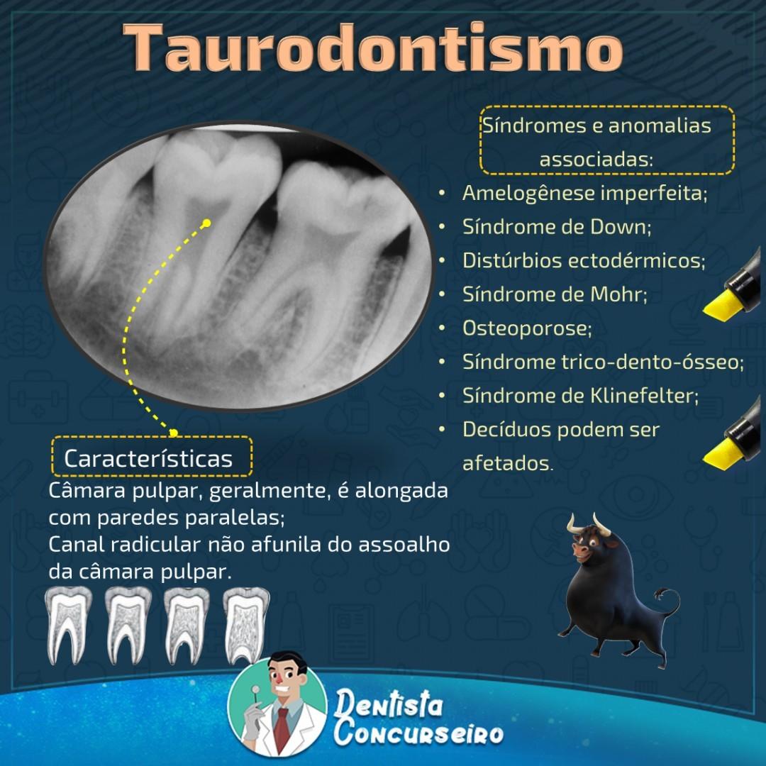Resumo de Taurodontismo