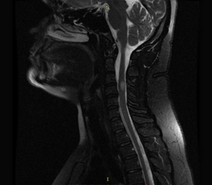 Ressonancia magnetica esclerose multipla