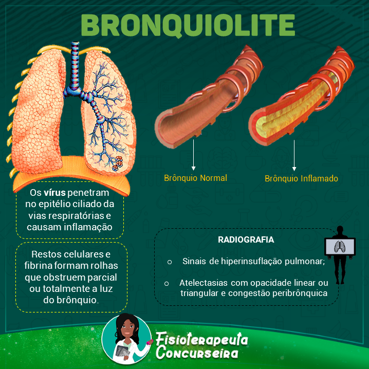 Resumo de Bronquiolite | Fisioterapia