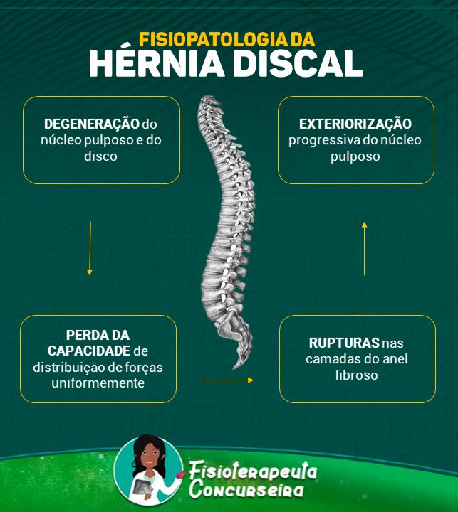 Mapa Mental da Fisiopatologia da Hérnia Discal | Fisioterapia