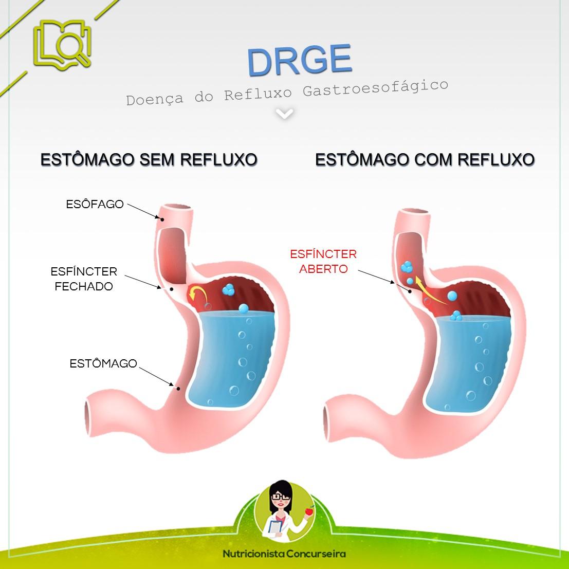 Resumo sobre Doença do Refluxo Gastroesofágico | Nutrição