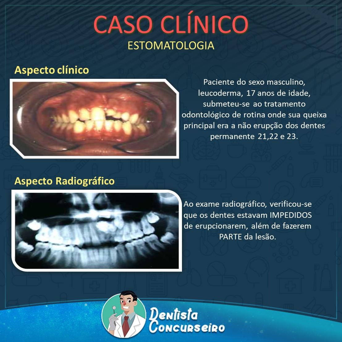 Caso Clínico de Estomatologia | Odontologia