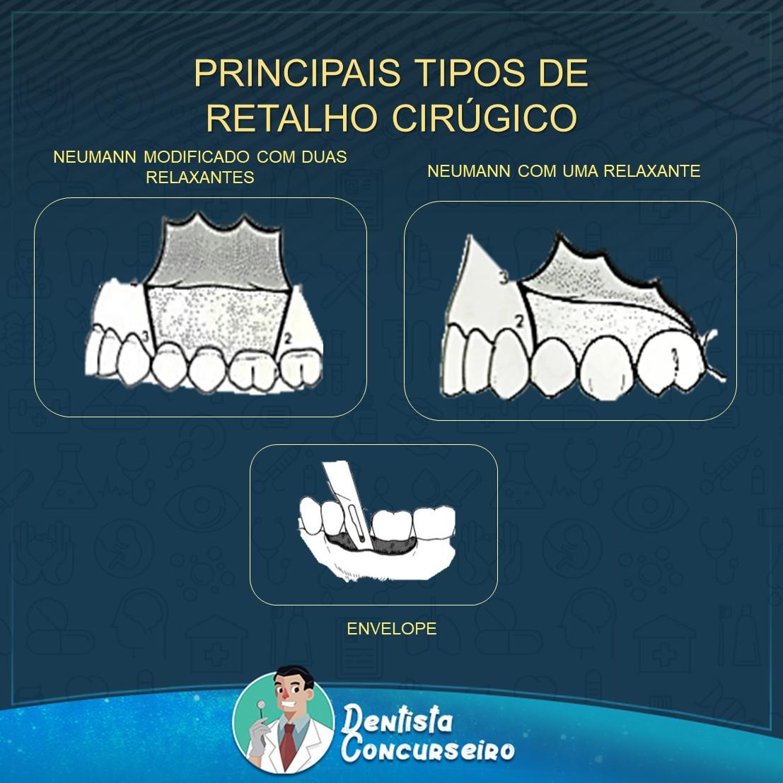 Resumo de Retalhos Cirúrgicos | Odontologia