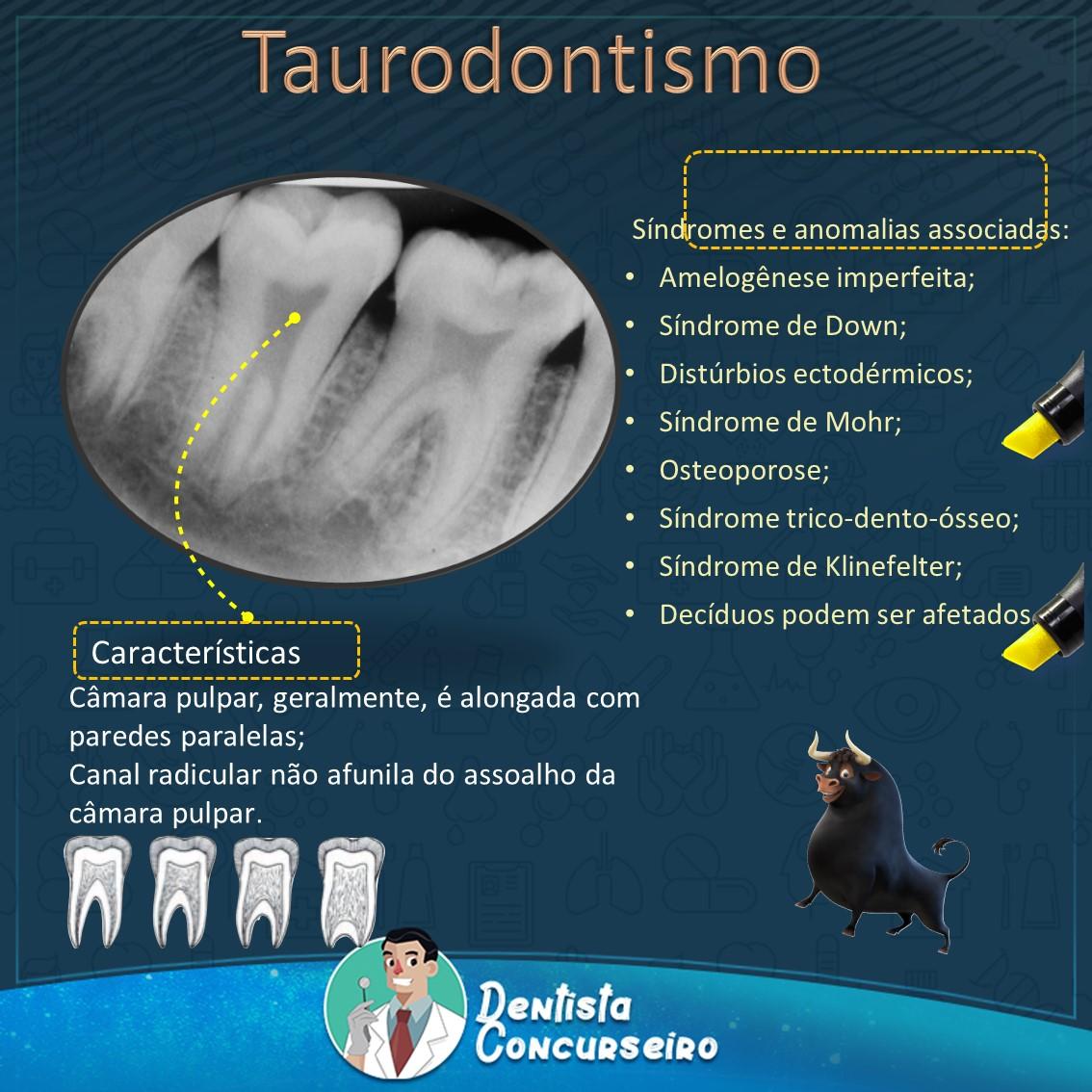 Resumo de Taurodontismo   Odontologia