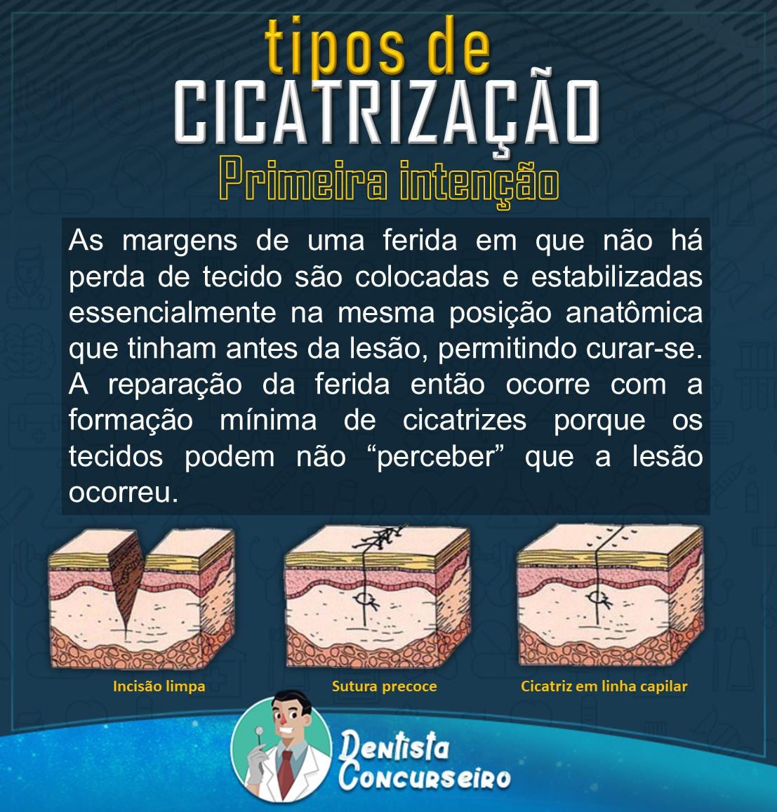 Resumo de Tipos de Cicatrização | Odontologia