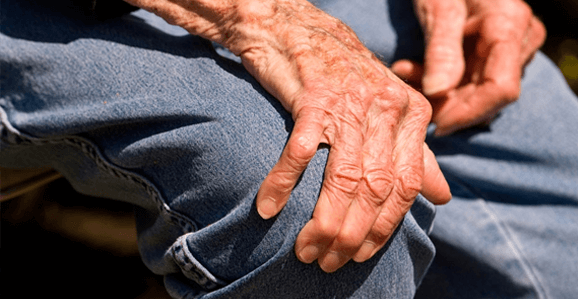 Fisioterapia não ajuda pacientes com Parkinson, diz estudo