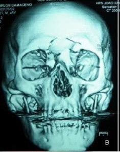 Serie Casos Clínicos - Fratura do osso etmoide