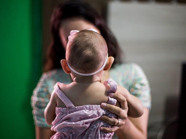 Crianças com microcefalia podem ter ganhos com terapia intensiva