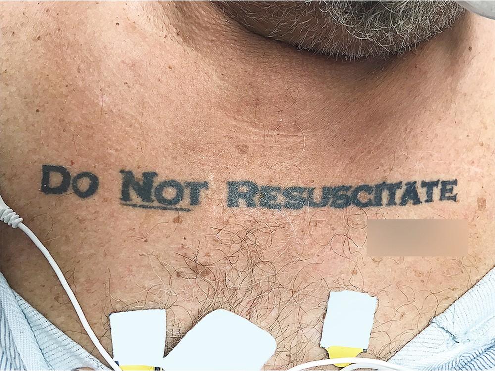 Paciente fez essa tatuagem e confundiu os médicos