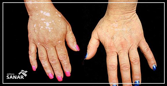 Remédio de artrite consegue reverter manchas de vitiligo.