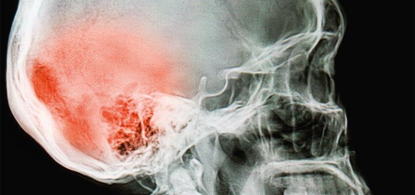 Serie Casos Clínicos - Traumatismo cranioencefálico grave