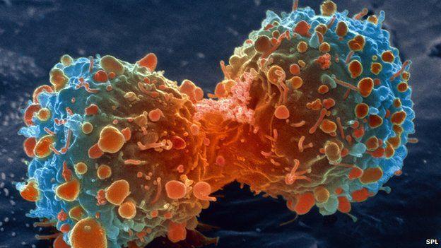 Cientistas descobrem método que pode levar a vacina universal contra o câncer